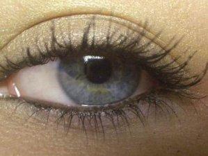 oko, лечение, възпаление на очи